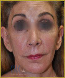After - Sculptra Case 6