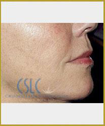 After - Sculptra Case 1