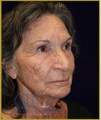 Before - MACS-Lift and Laser Resurfacing Treatment Case 62