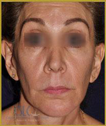 Before - Sculptra Case 6