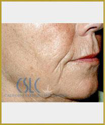 Before - Sculptra Case 1