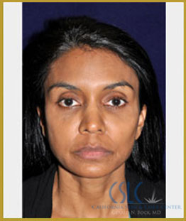 After - Facial Fillers Treatment Case 5