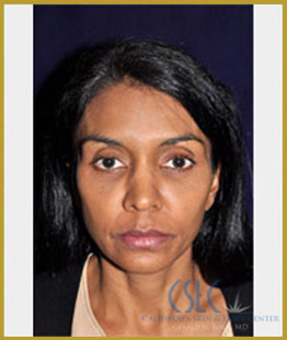 Before - Facial Fillers Treatment Case 5