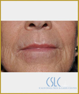 After - Upper Lip Filler Treatment Case 2