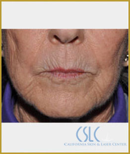 Before - Upper Lip Filler Treatment Case 2