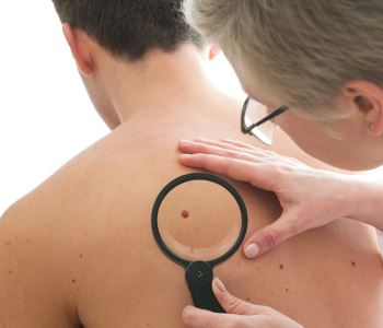 The importance of a skin cancer screening session in Stockton