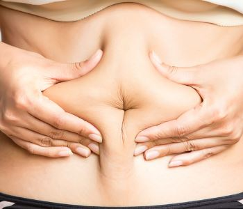 Choosing a Liposuction Specialist in Stockton