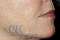 After - Sculptra Treatment Case 1