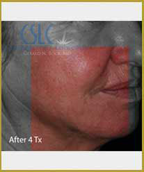 After - Infini Radiofrequency Microneedling Case 3