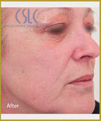 After - Infini Radiofrequency Microneedling Case 5