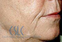 Before - Sculptra Treatment Case 1