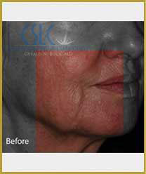 Before - Infini Radiofrequency Microneedling Case 3