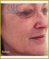 Before - Infini Radiofrequency Microneedling Case 5