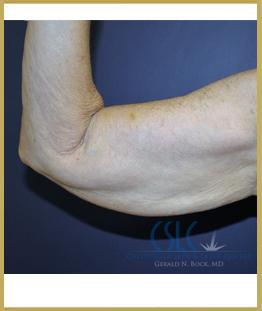Before - J-Plasty Case 3