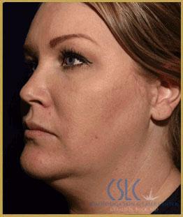 Before - J-Plasty Case 5