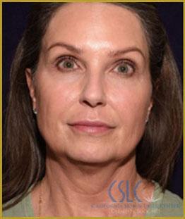Before - J-Plasty Case 6