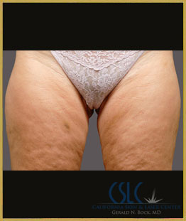 After - CoolSculpting Inner Thighs Case 14