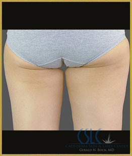 After - CoolSculpting Inner Thighs Case 4