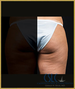 After - CoolSculpting Outer Thighs Case 4