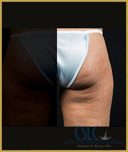 After - CoolSculpting Outer Thighs Case 21