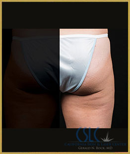 After - CoolSculpting Outer Thighs Case 20