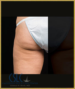 After - CoolSculpting Outer Thighs Case 6