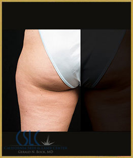 After - CoolSculpting Outer Thighs Case 18