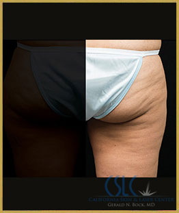 After - CoolSculpting Outer Thighs Case 17