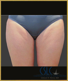 After - CoolSculpting Inner Thighs Case 13