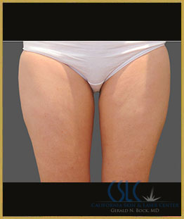 After - CoolSculpting Inner Thighs Case 11