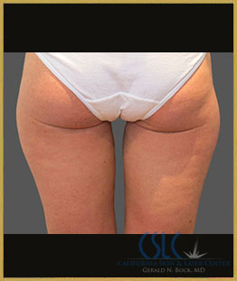 After - CoolSculpting Inner Thighs Case 10