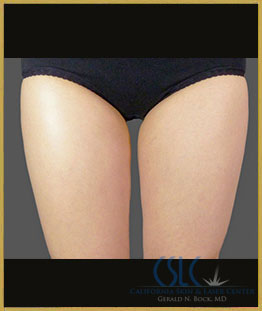 After - CoolSculpting Inner Thighs Case 1