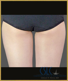 After - CoolSculpting Inner Thighs Case 8