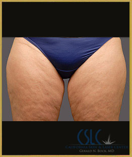 Before - CoolSculpting Inner Thighs Case 14
