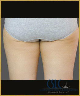 Before - CoolSculpting Inner Thighs Case 4