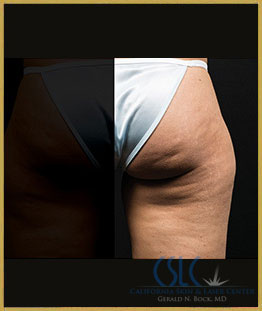 Before - CoolSculpting Outer Thighs Case 21
