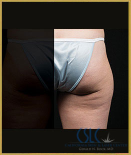 Before - CoolSculpting Outer Thighs Case 20