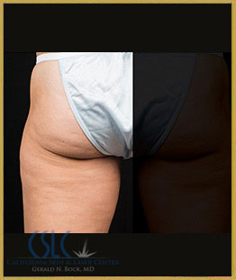 Before - CoolSculpting Outer Thighs Case 4