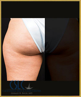 Before - CoolSculpting Outer Thighs Case 18