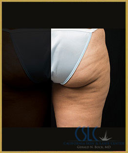 Before - CoolSculpting Outer Thighs Case 17