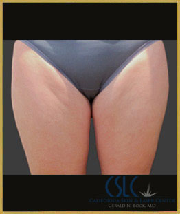 Before - CoolSculpting Inner Thighs Case 13