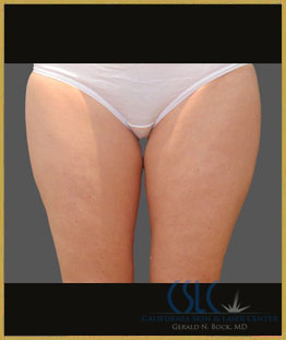 Before - CoolSculpting Inner Thighs Case 11