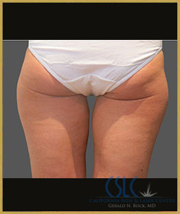 Before - CoolSculpting Inner Thighs Case 10
