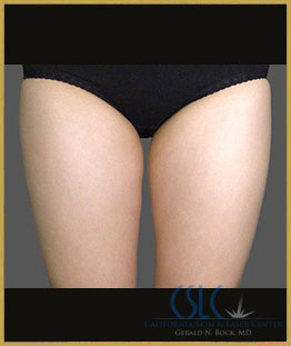Before - CoolSculpting Inner Thighs Case 3