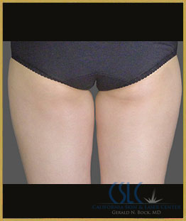 Before - CoolSculpting Inner Thighs Case 8