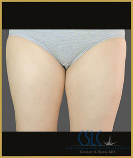 Before - CoolSculpting Inner Thighs Case 6