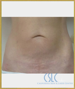 After - Sciton Laser Resurfacing Case 70