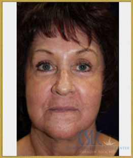 After - Sciton Laser Resurfacing Case 1