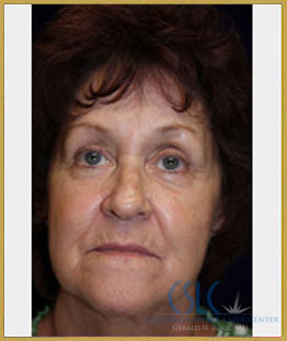Before - Sciton Laser Resurfacing Case 1
