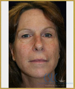 Before - Sciton Laser Resurfacing Case 3